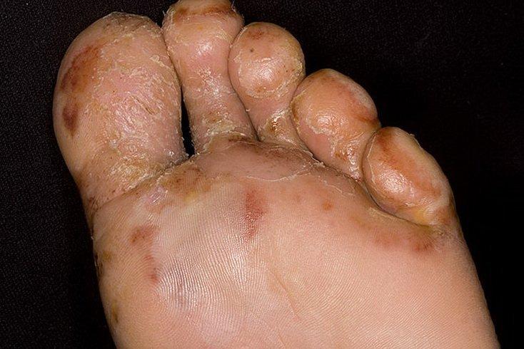 аллергия на грибковую плесень