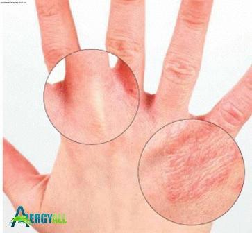 Данный вид аллергии проявляется в виде сыпи
