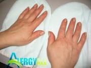 Аллергия на руках довольно частое явление