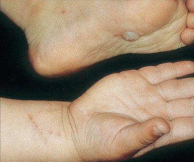 Контактный дерматит