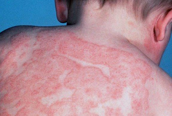 Аллергический дерматит в паху у детей 68