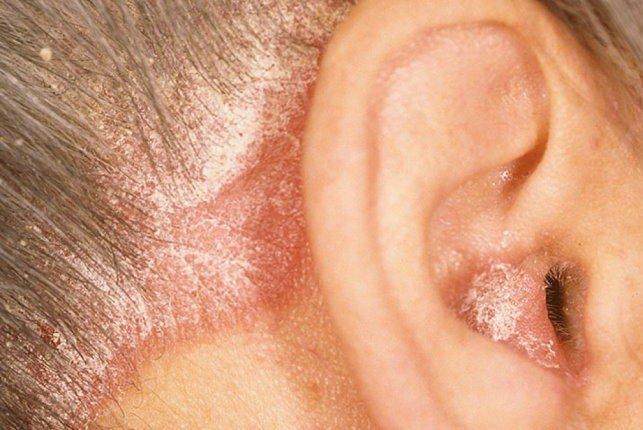 Дерматит уха