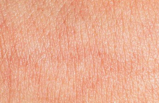 Нормальная кожа