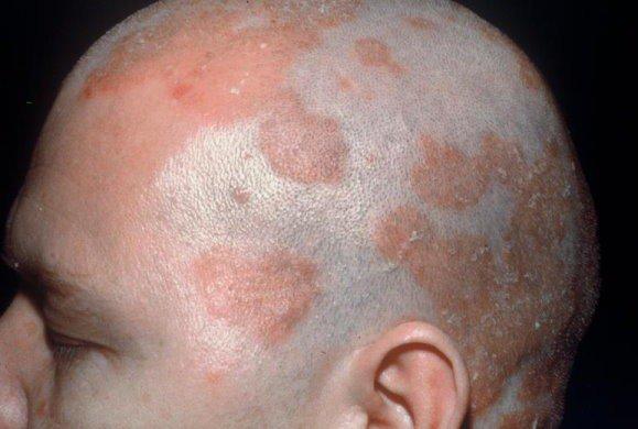 Дерматит на лице после мыла