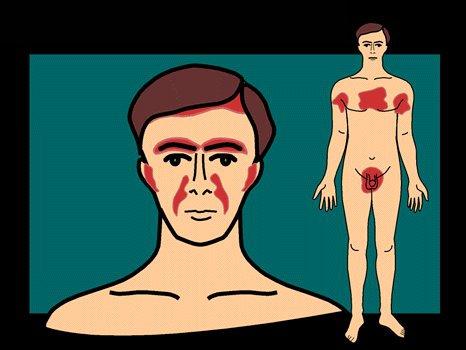 Себорейный дерматит локализация