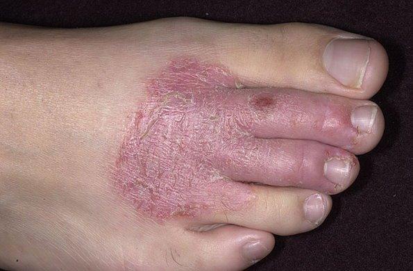 Хроническая экзема ног
