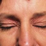 Диффузный нейродермит: причины обострений, симптомы и лечение