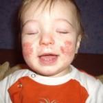 Как проявляется и лечится атипический дерматит у взрослых и детей