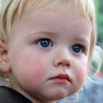Ещё раз о детском диатезе и взрослой экземе