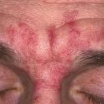 Что следует знать о дерматите?
