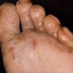 Особенности дисгидроза на стопах: симптомы и лечение заболевания