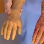 Причины появления кожных заболеваний