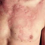 Симптомы и признаки крапивницы. Формы заболевания и тактика их лечения
