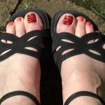 Дерматит на ногах, коже живота, рук, лица и головы — симптоматика и лечение