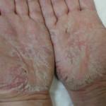 Как по визуальным симптомам определить дерматит?