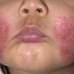 Возникновение экземы в области лица, как результат нервозности и аллергии