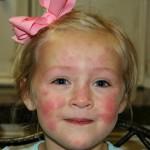 Появление крапивницы на лице может быть опасно для вашей жизни